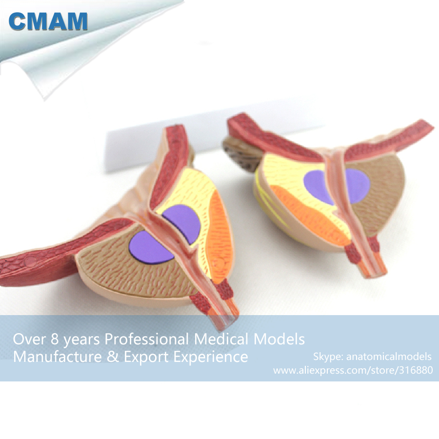 CMAM UROLOGY11 Two Time Large Movable 4 Parts Male Prostate Anatomical Model