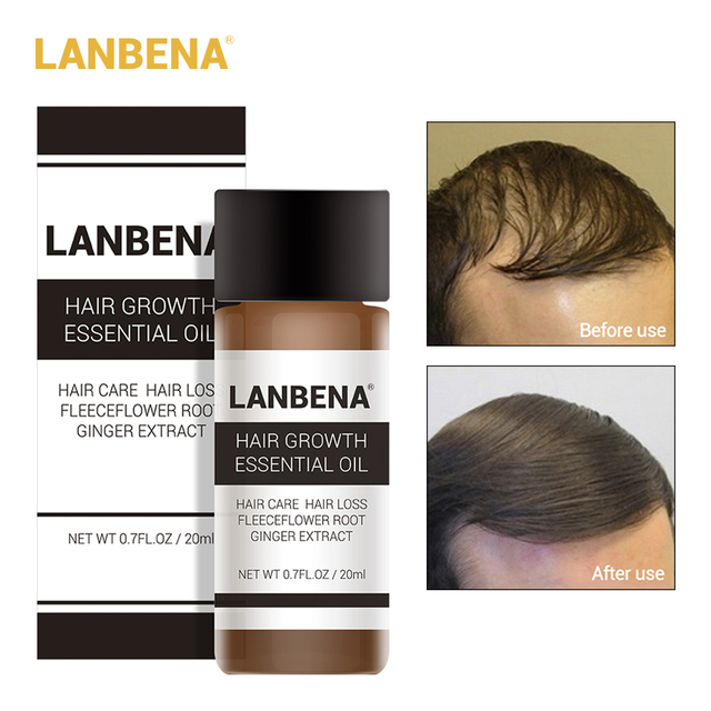 LANBENA Hair Growth Essential Oil Liquid Fast Powerful Hair Growth Essence Treatment Preventing Hair Loss Products for Men 20ml 1