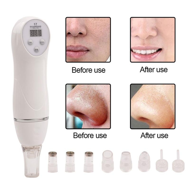 6 Tip Gezichtsverzorging Schoonheid Apparaat Huid Diamant Dermabrasie Verwijdering Litteken Acne Porie Peeling Machine Zorg Massager Microdermabrasie
