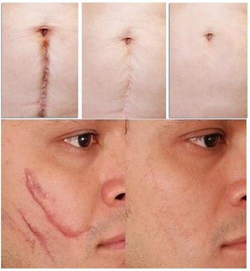 Face Acne Scar Removal Cream Stretch Marks Remove Scar Treatment