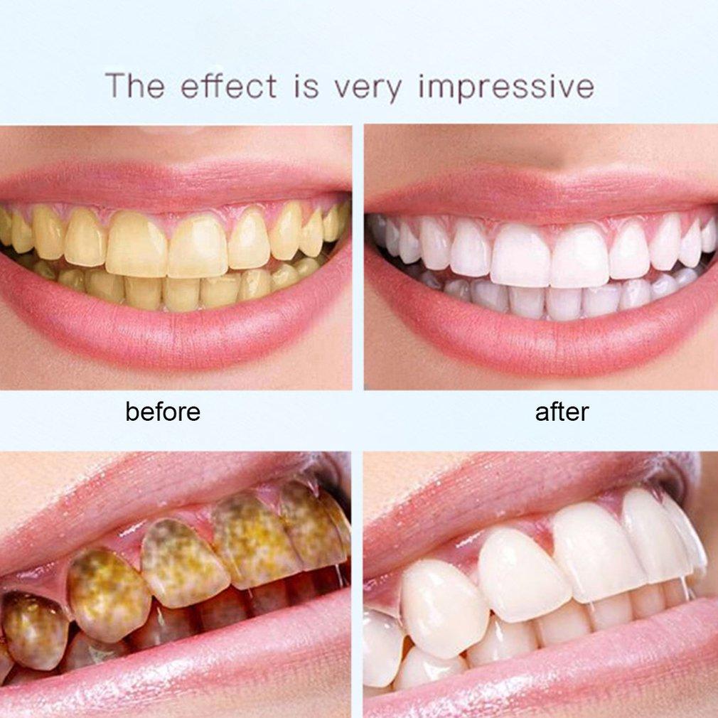 Effective Teeth Whitening Pen Mint Fragrant Tooth Gel Whitener Bleach Stain Eraser Big Smile Teeth Care Pen