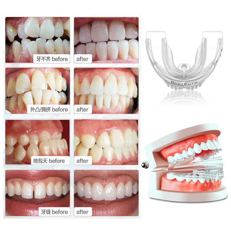 Myobrace Teeth Alignment Caps Tooth Orthodontics Braces Dental Veneers Anti Molar Orthotics Retainers Tooth Cap Teeth Whitening baby toys