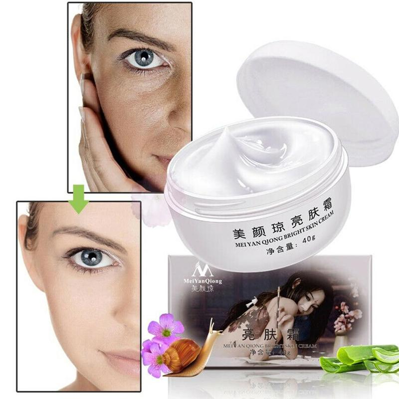 Snail Extract Freckle Cream Strong Effects Whitening Remove Melasma Acne Spots Pigment Melanin Aloe Pearl Moisturizing Skin Care