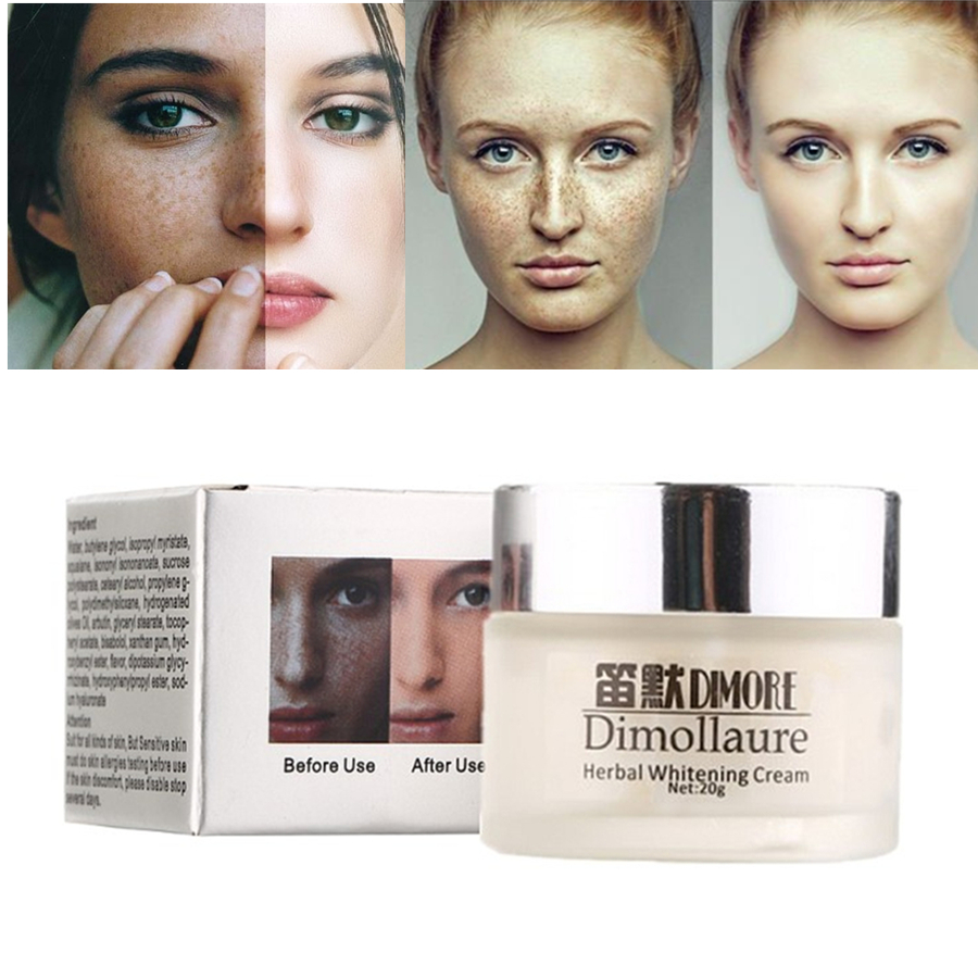 Dimollaure Strong Whitening Freckle Cream Removal Melasma Acne Scar Pigment Melanin Sun Spots Dimore Face Care