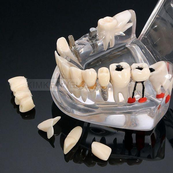 Removable Dental Implant Disease Teaching Teeth Model & Restoration Bridge Tooth teeth model dental periodontal disease practice dental model with removable gum can
