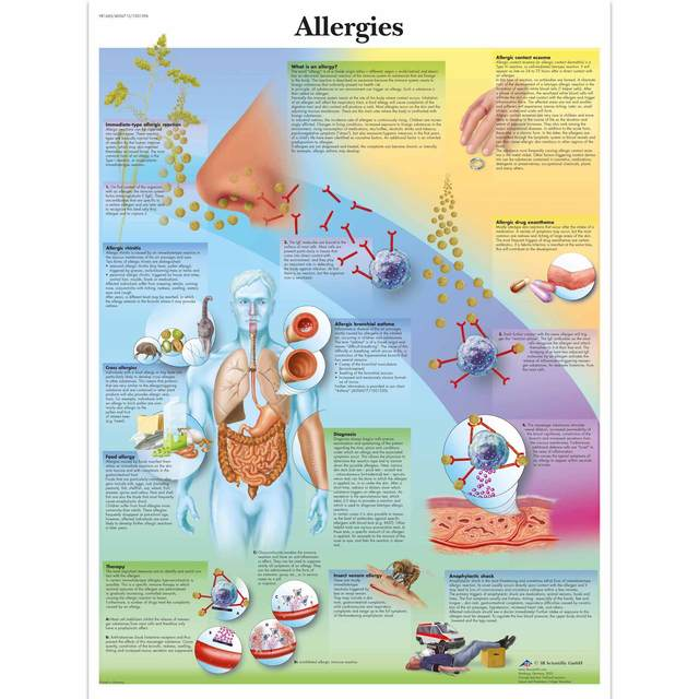 Medical Anatomy Anatomical Poster Allergies Chart Classic Canvas