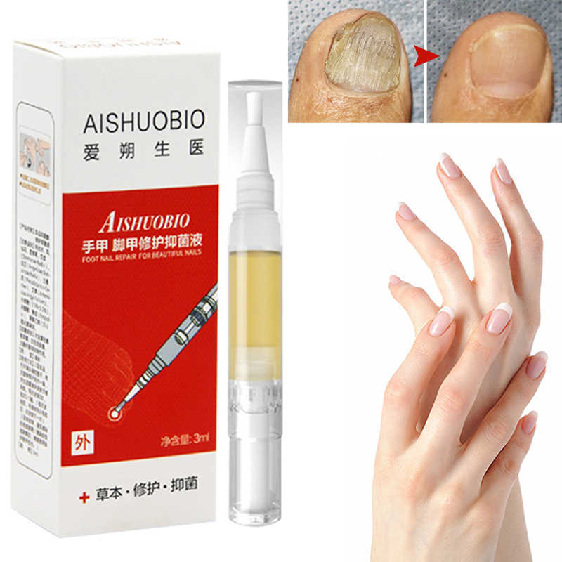 1PCS Nail Treatment Onychomycosis Paronychia Anti Fungal
