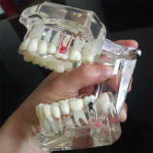 Dental Implant Disease Teeth Model With Restoration Bridge Tooth Dentist For Medical Science Dental Disease Teaching Study