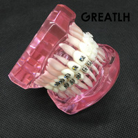 Dental Orthodontic Model with Metal and Ceramic Brackets 3003 Pink Dental Teeth Study Model