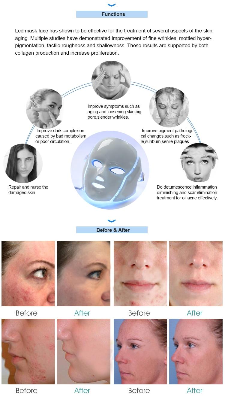 PDT-face-mask_10