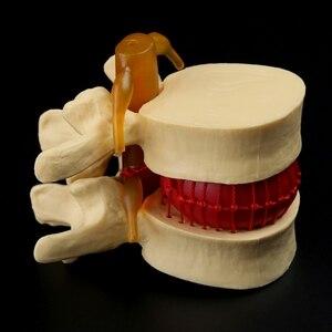 Image 2 - Accesorios médicos, modelo de gastos de envío gratis, columna anatómica, disco Lumbar, hernia, anatomía, herramienta de enseñanza médica