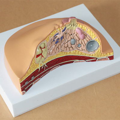 16*13*12cm Common breast disease model breast pathology breast lesions model breast examination gynecological model