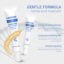 Acne Treatment Gel Skin Care