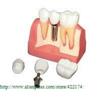 Free Shipping Implant analysis model dental tooth teeth dentist anatomical anatomy model odontologia