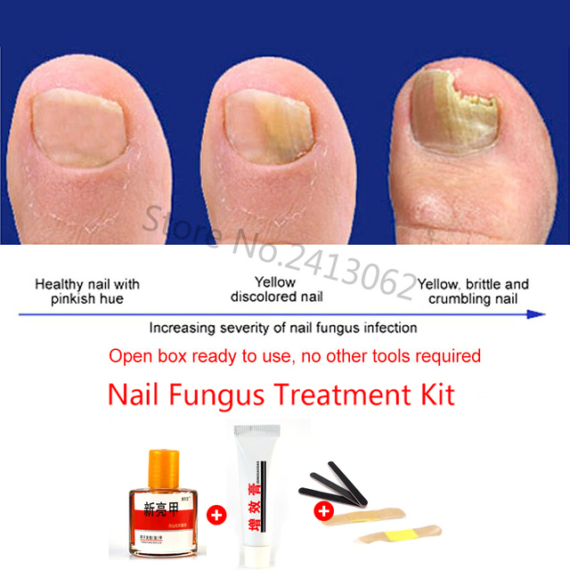 Chinese Medicine Herbs Toe Nail Fungus Treatment Anti Fungal Nail