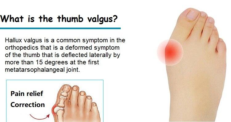 New hallux valgus corrector thumb valgus separation big foot bone deformation correction Silica gel corrector