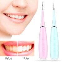 Portátil elétrico scaler dental scaler dente removedor de placa carregamento usb z30