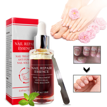 Herbal Nail Fungus Treatment Nail Care Tools Repair Skin Care Cream Remedy For Nail Foot Fungus Toe Cuticle Oil Foot Care Tools 2