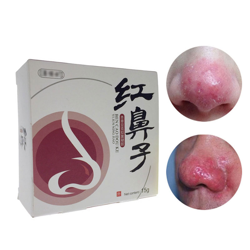 Chinese Herbal Medicine Rosacea Treatment Red Nose Acne Rosacea Ointment Remove Skin Redness Flushing Vaseline Acne Treatment sumifun 100% original 19 4g red white tiger balm ointment thailand painkiller ointment muscle pain relief ointment soothe itch