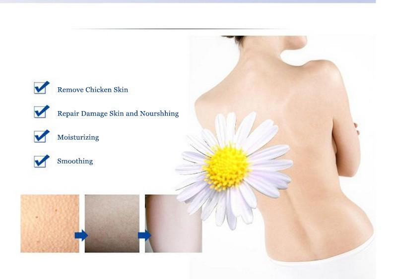 Health Skin Care Genuine Chamomile Exfoliating Serum Remove Chicken Skin Folliculitis Treatment Shrink Pores Essential Oil 50ml 3