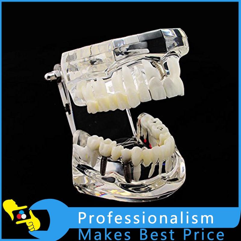 1Piece Dental Implant Disease Teeth Model Restoration Bridge Tooth Model Tool For Medical Science Teaching New 2018 new denture teeth model 6x caries comparison model tooth decay model dentist for medical science teaching