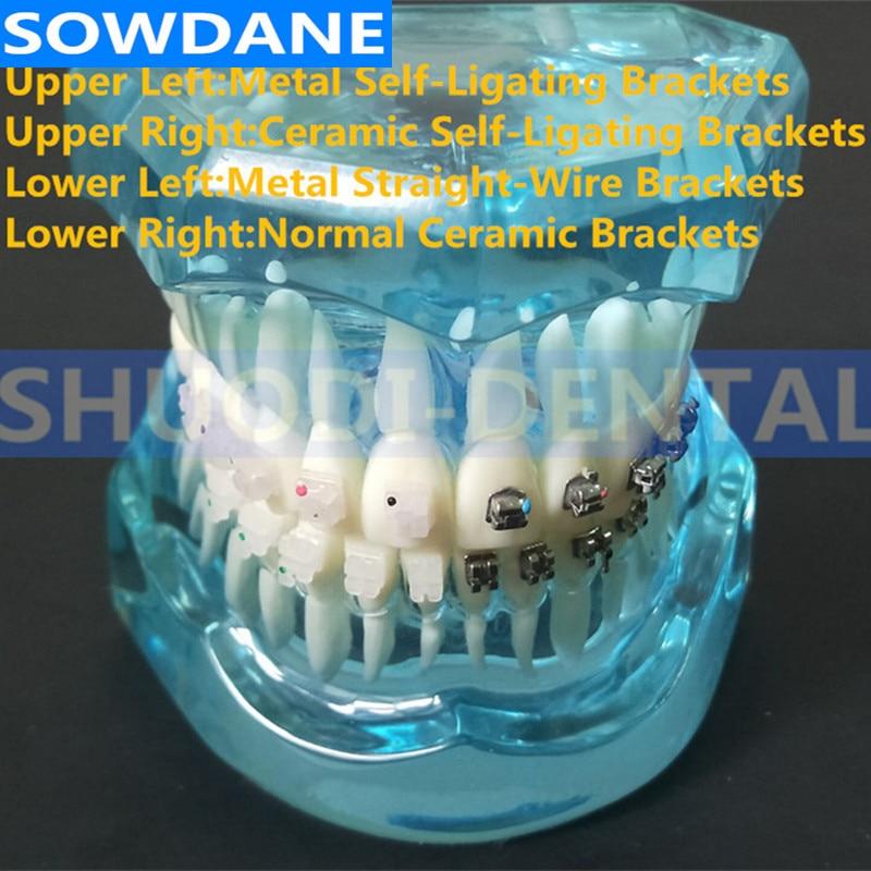Communication dentaire Toth modèle dents modèle 4 types supports avec support auto ligaturant en céramique support auto ligaturant en métal
