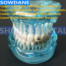 Dental Communication Toth Model Teeth Model  4 kinds Brackets with Ceramic Self Ligating Bracket Metal Self Ligating Bracket 2016 dental orthodontic study teeth model with metal brackets simulation teeth model teeth