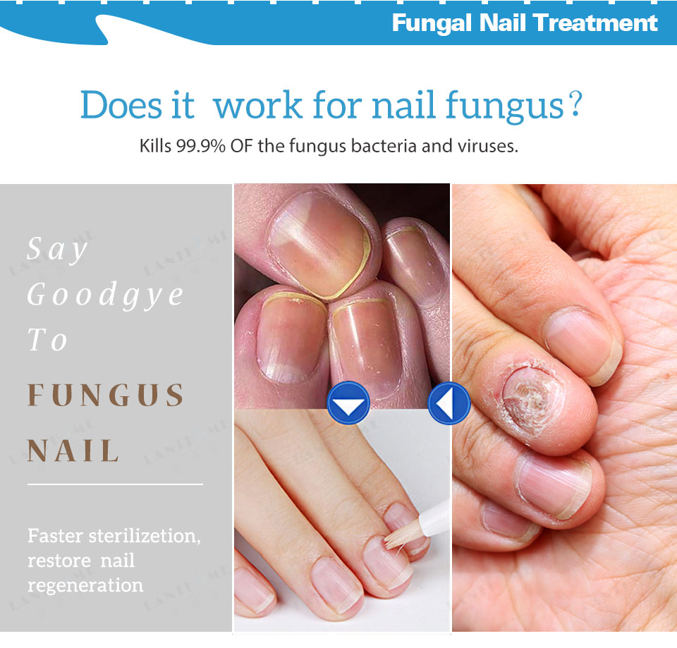 Kills 99 9% Bacteria and Fungus Nail Fungus Treatment Cream Onychomycosis  Anti Fungal Nail Infection Nourishment Nail Products
