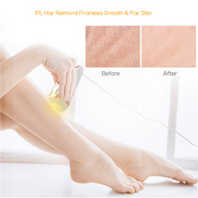 Painless IPL Epilator Laser Permanent Hair Removal Device