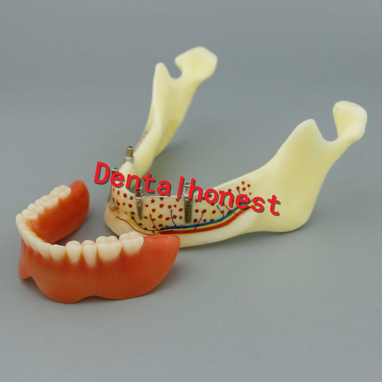 Dental Mandible Implant Overdenture Teeth Model with vessels Demo Model 2014 teeth model blue dental orthodontics communication model with 4 types of brackets