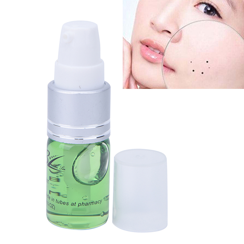 Freckle Repair Cream Oil Mole & Skin Tag Repair Solution Painless Mole Skin Dark Spot Repair Face Wart Tag