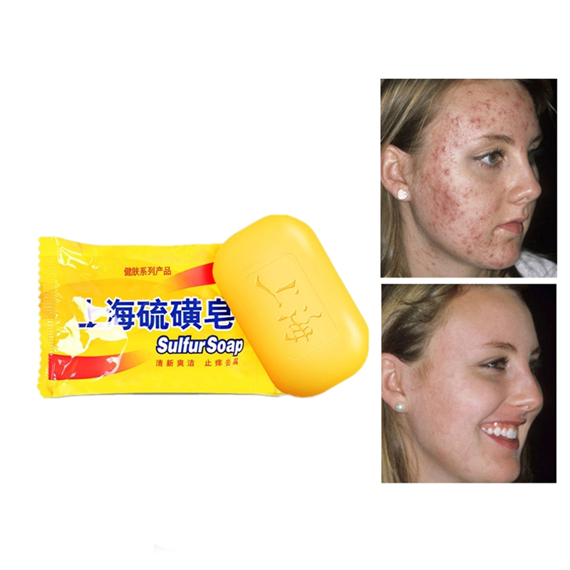 New Arrival Health Care Shanghai Sulfur Soap 85g Allergy Fresh Oil Control Anti-bacterial Anti-inflammatory Deep Cleaning