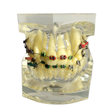 1 Piece Dental Orthodontic Study Model Transparent Teeth Malocclusion Orthodontic Model with Colorful Brackets & Hoops Hot Sale