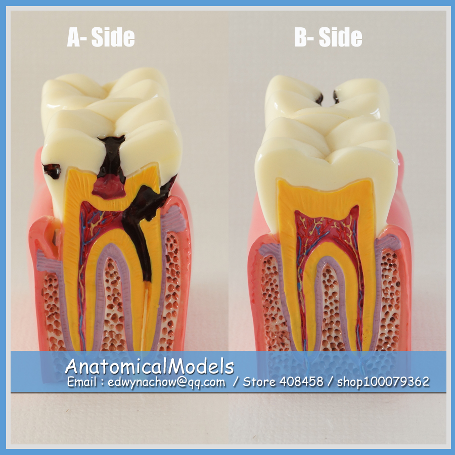 13144 DH1302 Enlarged 6x Caries Comparation Tooth Model, Medical Science Educational Dental Teaching Models cmam nasal01 section anatomy human nasal cavity model in 3 parts medical science educational teaching anatomical models