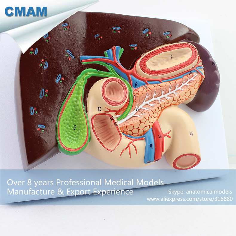CMAM-VISCERA02 Life Size Liver with Gallbladder, Pancreas and Duodenum Anatomical Model fatty liver imaging patterns and pitfalls