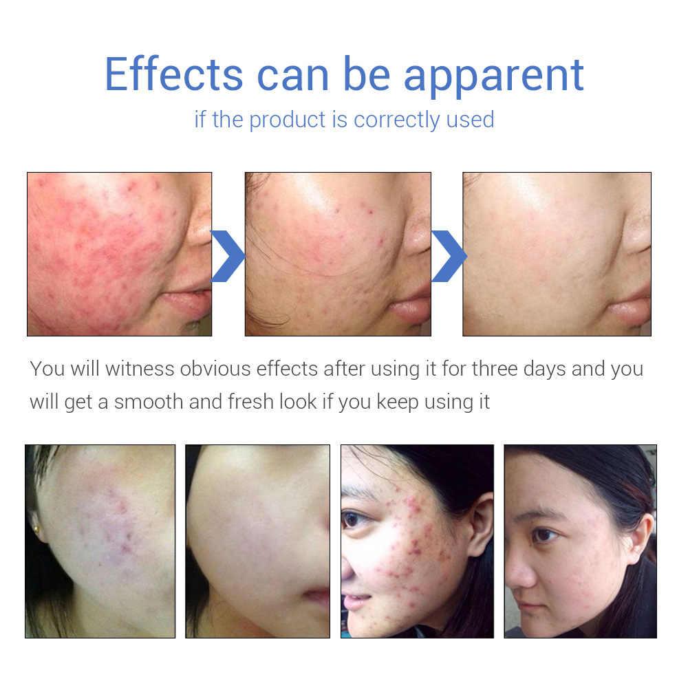 LANBENA Clear Huidverzorging Gel Olie Controle Acne Behandeling Gezicht Serum Reparatie Lederen Litteken Crème Remover Spot Curing Voedende Huid