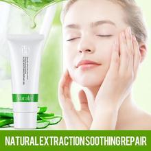 Aloe Gel Anti Acne Potion Moisturizing Suncare Lotion