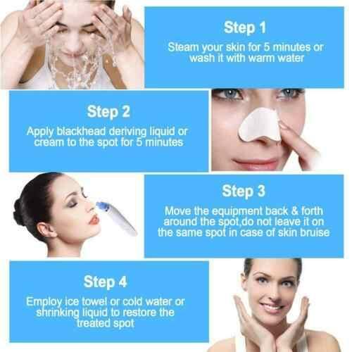 Komedo Remover Perawatan Kulit Pori Vacuum Cleaner Wajah Hidung Mendalam Pori Jerawat Jerawat Penghapusan Vakum Isap Facial Diamond Mesin
