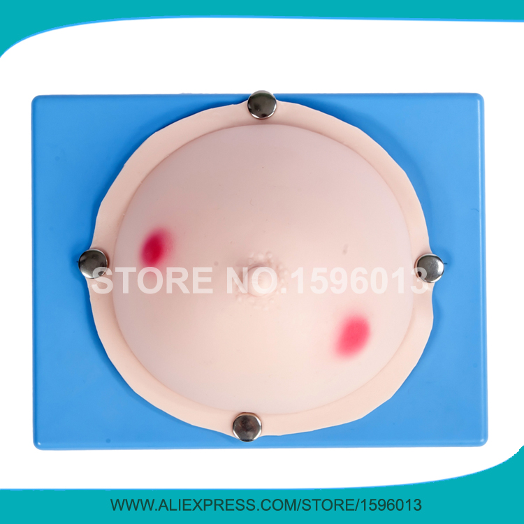 Vivid Mammary Abscess Examination Model,Breast Examination Model,Breast Abscess Simulator the pure abscess