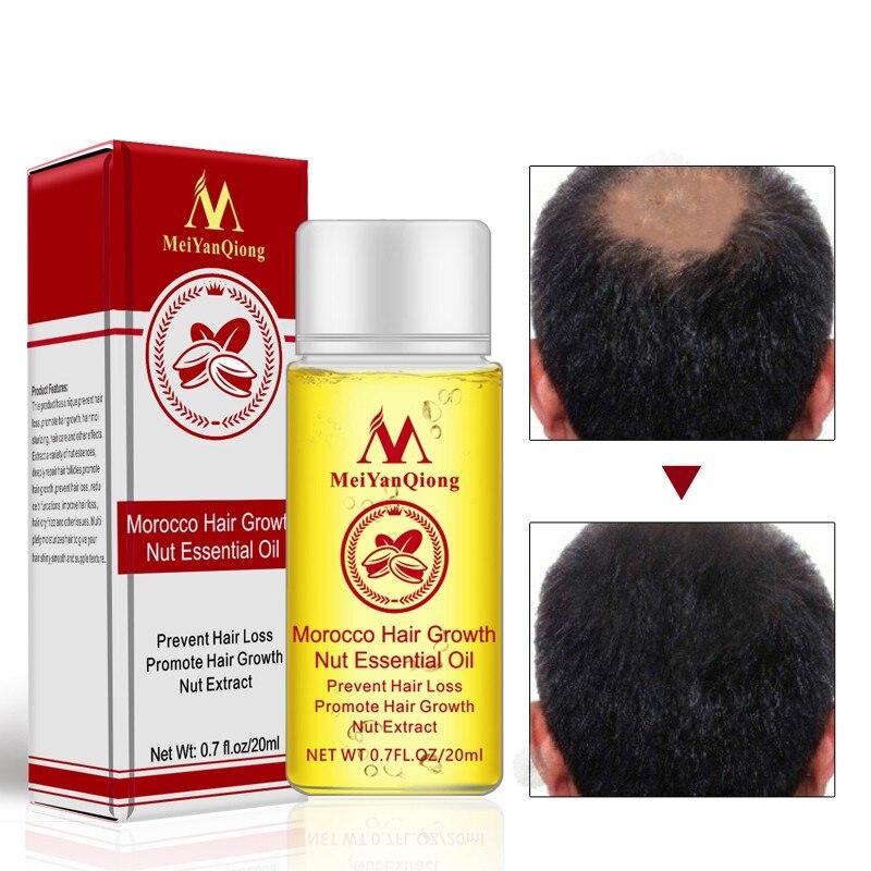 20ml Moroccan Hair Growth Nut Essential Oils Hair Faster Grow Oil Stop Hair Loss Beauty