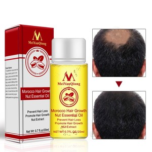 20ml Moroccan Hair Growth Nut Essential