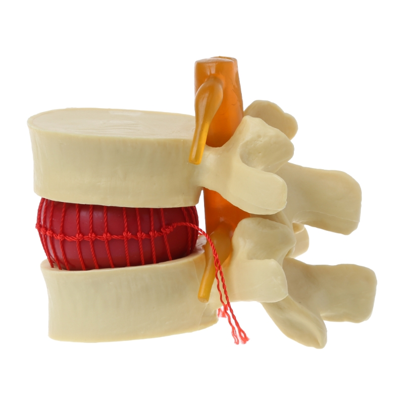 Human Anatomical Lumbar Disc Herniation Model Medical Learn Aid Anatomy Instrume Vertebrae Model Yellow Color