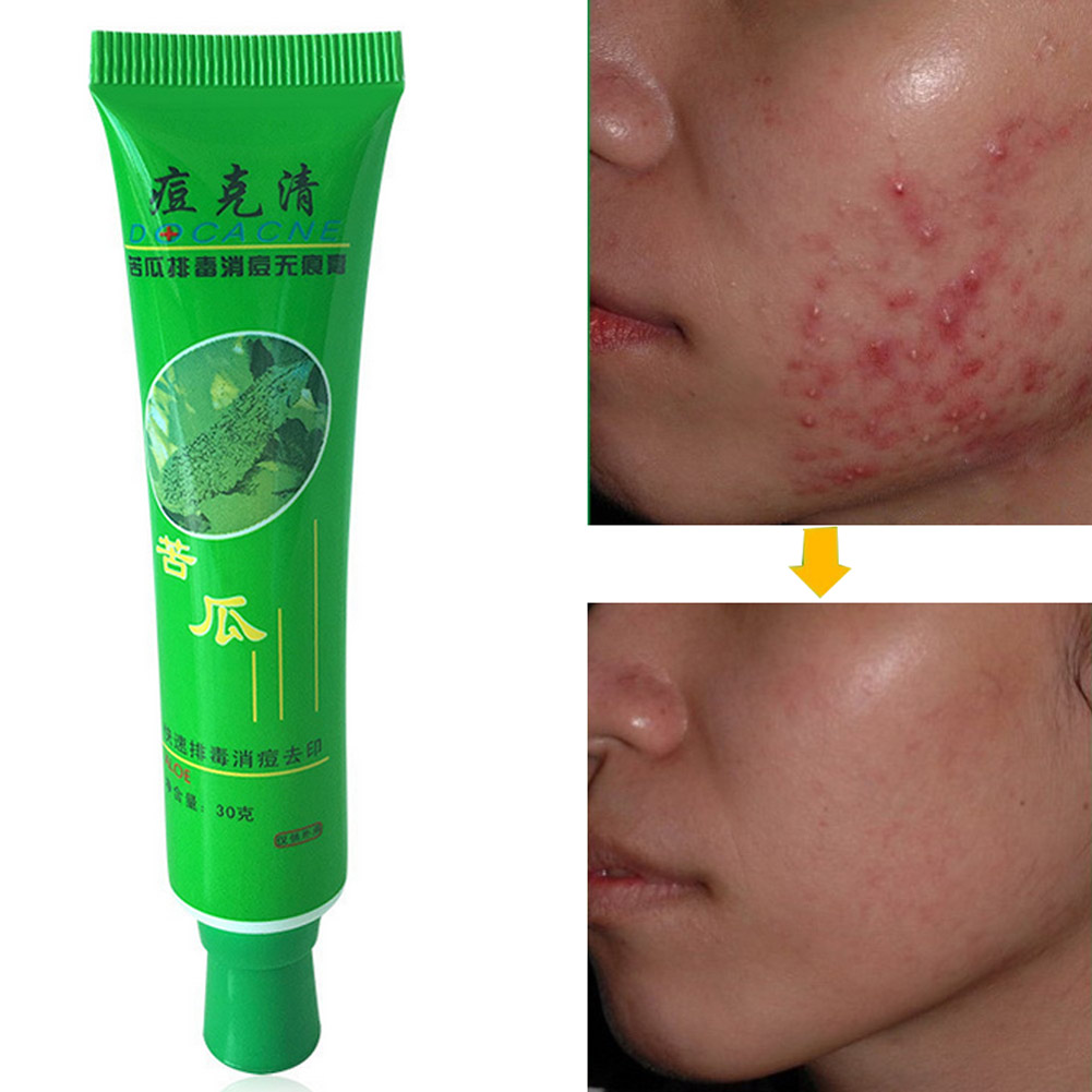 30g Face Acne Treatment Cream  Face Skin Repairing Acne Cream Oil Control Acne Remover Facial Skin Beauty Cleaning Cream