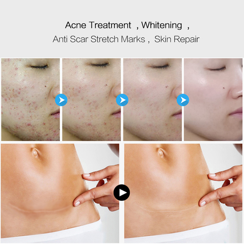 EFERO Face Cream Whitening Cream Acne Removal Essence Serum for Face Skin Care Pimple Spot Acne Treatment Cream for Face Karachi
