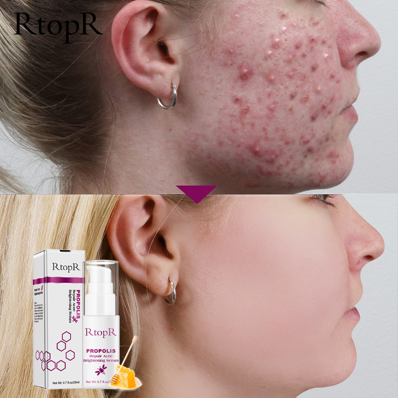 RtopR Propolis Repair Acne Brightening Serum Acne Scar Spots Cleaning Serum Shrink Pores Eliminates Acne Treatment Oil control(China)