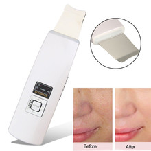 Rechargeable Ultrasonic Skin Scrubber Massage High Frequency Vibration Facial Care Deep Peeling Dead Skin Exfoliating Cleaner