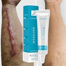 Крем для удаления шрамов от акне, крем для восстановления кожи, крем для лица, лечение акне и пятен, лечение угрей, отбеливающий крем для ухода за кожей