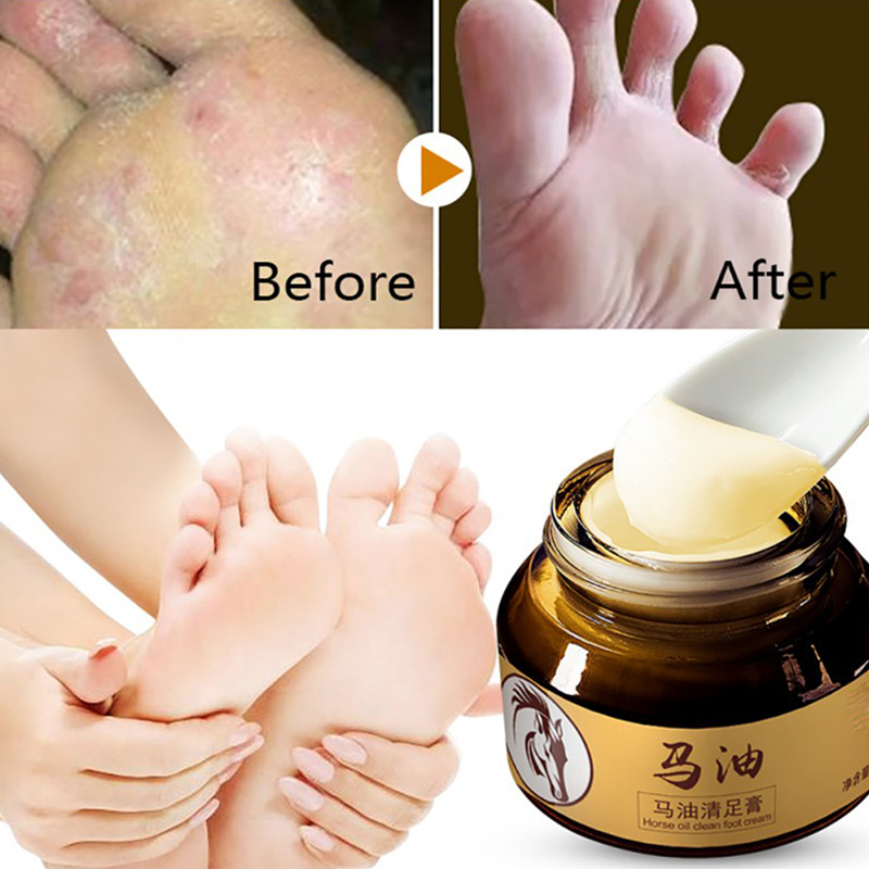 Horse Oil Feet Cream Care Beriberi Cream For Athlete's Foot Feet Itch Blisters Anti-chapping Peeling Beriberi Bad Feet Ointment