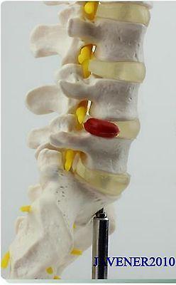 1:1 Human Anatomical Lumbar Vertebra Medical Model Flexible +Stand
