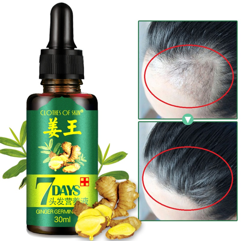 7 Days Hair Essential Oil Hair Care Oil Hairdressing Hair Mask Ginger King Essential Oil Dry And Damaged Hair Nutrition